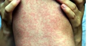 Hay un caso importado de sarampión en México; habrá más: Salud